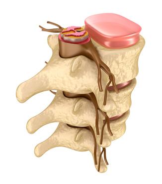 Drei Wirbel mit Bandscheiben und dem Rückenmark im Wirbelkanal