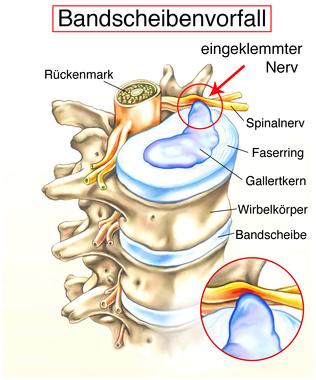 Bandscheibenvorfall | Ursachen, Symptome & Behandlung