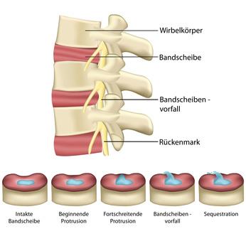 arthrose lendenwirbel operation